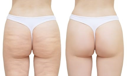 156cellulite-on-buttocks-thighs-white-260nw-1215893404.jpg