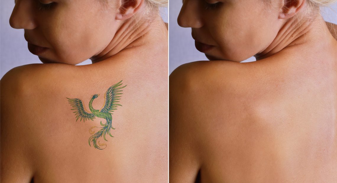 189laser-tattoo-removal-befor-and-after.-514411126_3100x1709-1140x620.jpeg